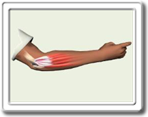 tennis-elbow-golfers-elbow